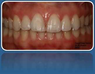 Orthodontis Cosmetic Ceramic Braces for Adult Patients Dublin