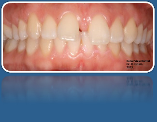 Orthodontic Ceramic Clear Braces for Adult Patients